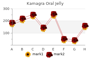 cheap 100mg kamagra oral jelly with mastercard